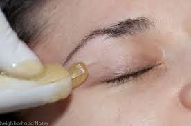 Sugar hair removal process photo.